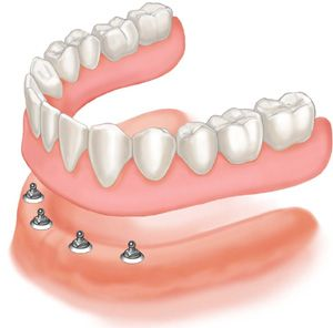 Implant Retained Dentures 8 reasons to ditch your old dentures and replace them with an implant retained dentures.