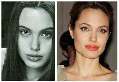Angelina Jolie Plastic Surgery Before and After Nose Job and Chin Implants - Before and After Plastic Surgery