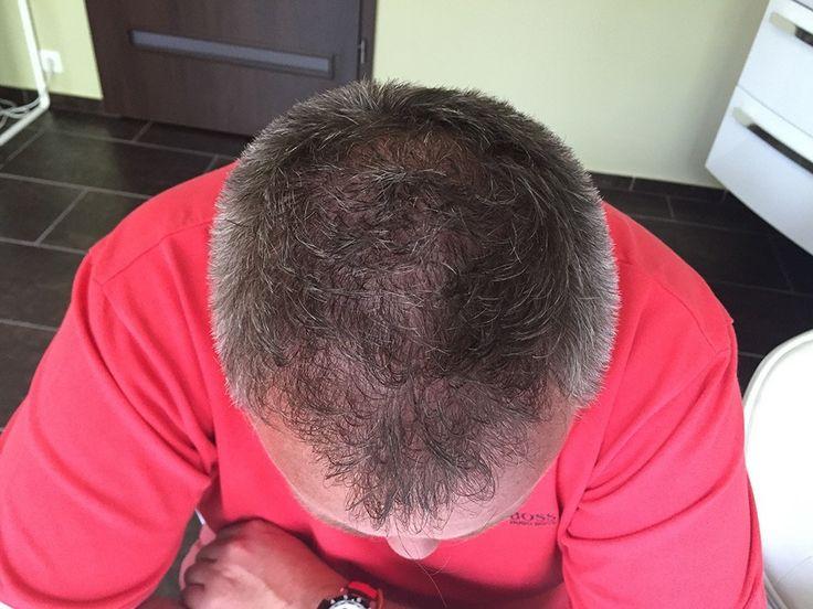 Haartransplantation Kosten   FUE3 Haarverpflanzung Preise  Ergebnisse Vorher-Nachher Bilder