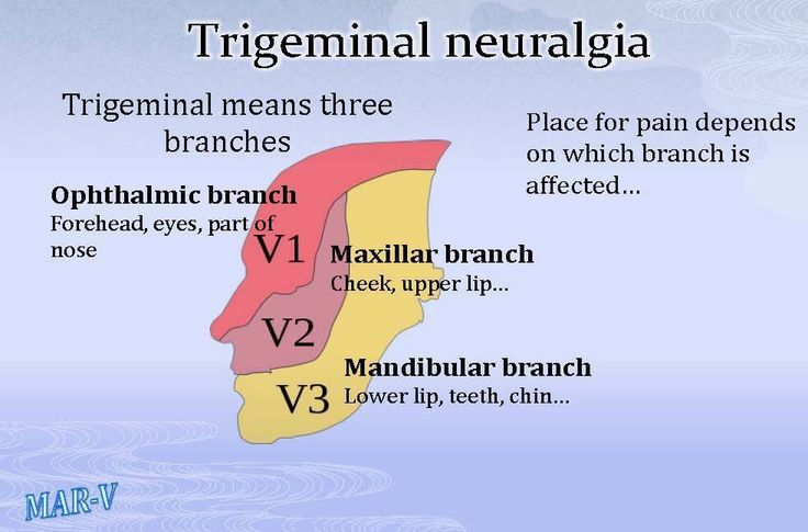 Trigeminal nerve branches | Trigeminal Neuralgia (TN ...