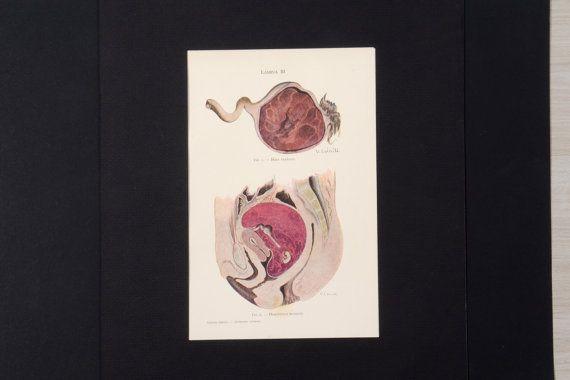 Ilustración médica antigua de anatomía ilustración por Brocantebcn