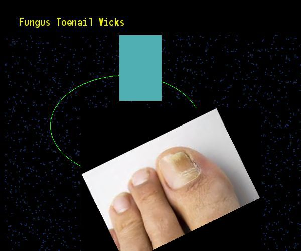 how to cut toenails with fungus