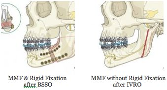 Orthognathic Surgery MMF