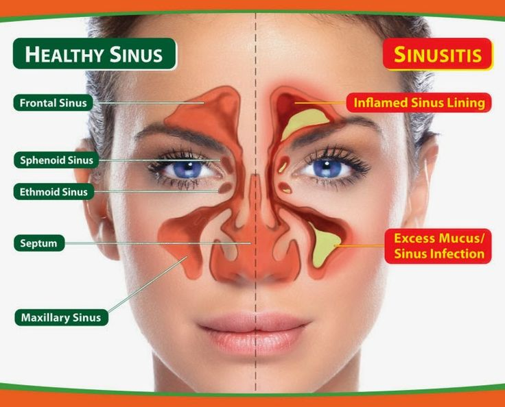 An Overview Of Sinusitis Sinusitis is an inflammation, or swelling, of the tissue lining the sinuses. Normally, sinuses are filled with air. But when they become blocked and filled with fluid, germs (bacteria, viruses, and fungi) can grow and cause an infection. Conditions that can cause sinus blockage include the common cold, allergic rhinitis (swelling …