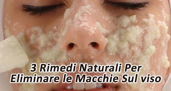 rimedi naturali per eliminare macchie sul viso