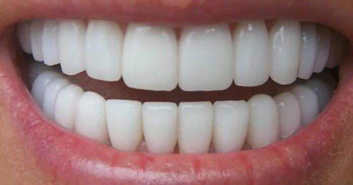 зубной налет, запах