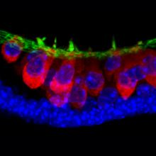 Using an innovative 3-D culture system, researchers were able to coax mouse embryonic stem cells to form cells and structures seen in the inner ear. The technique could lead to deeper insights into inner ear development and disorders.