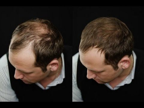 Most Effective Natural Way To Regrow Hair For Men