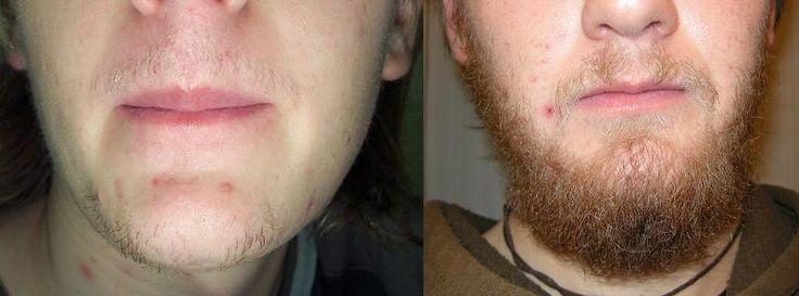 Fazer barba crescer com minoxidil