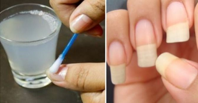 Bastano Solo 2 Ingredienti Naturali Per Far Crescere Le Unghie Sane E Che Non Si Spezzano #unghie #bellezza #beauty #nails