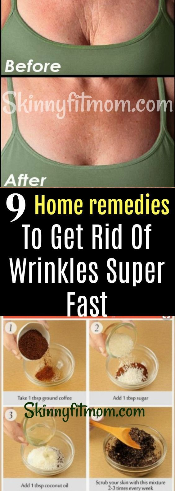 9 Home Remedies For Anti-Aging and To Help Make Wrinkles Around Your Face, Mouth And Eyes Disappear Super Fast! Tutorials And Step By Step Skin Care Routines. #antiagingbeautyproducts
