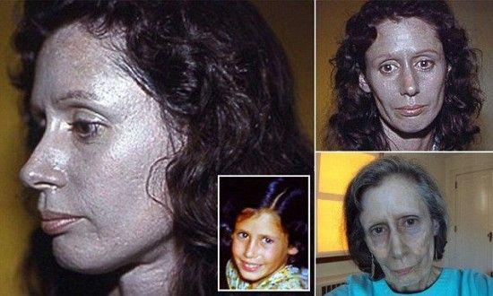 Rosemary Jacobs argyrie peau argentee   Rosemary Jacobs, femme à la peau argentée suite à des gouttes nasales   Rosemary Jacobs photo peau m...