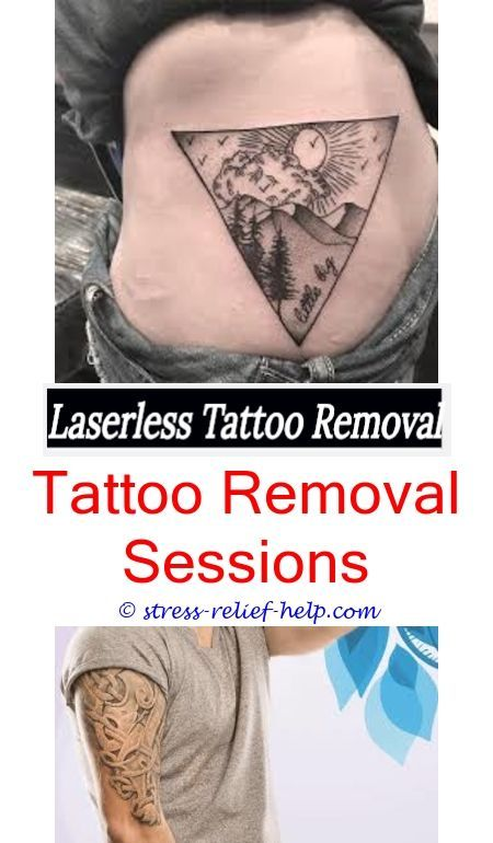 small tattoo removal laser tattoo removal toronto - fastest way to ...