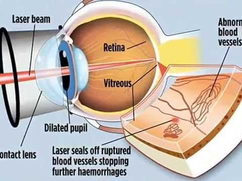 Lasik Eye Surgery Risks - Lasik Eye Surgery Risks And Complications