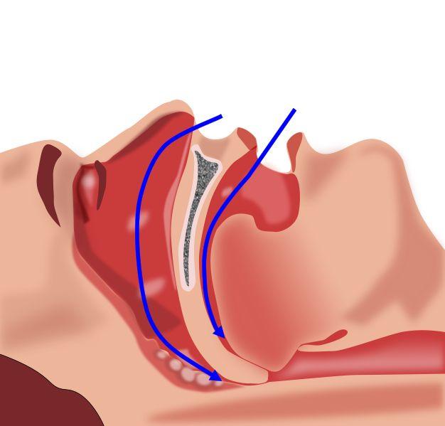 Les causes de l'apnée du sommeil