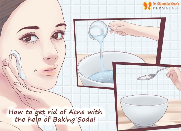 If you have #acne, try using baking soda for #SkinCare in the form of an acne mask. After washing your face, mix a few drops of #BakingSoda with warm water until you have a paste and apply it all over your face. Leave the mixture on for about 5-10 minutes and rinse off with lukewarm water. Baking soda will not only clean and smooth your #skin, but it also helps remove #blackheads!  Keep in mind that although baking soda is natural, some skin types tend to not love it as much others.