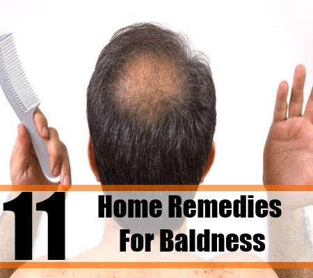 11 Home Remedies for Baldness