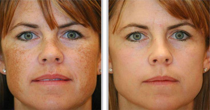 As manchas marrons no rosto são assunto muito comum e homens e as mulheres estão suscetíveis a elas. A hiperpigmentação, comumente conhecida como escurecimento em uma área da pele, ocorre devido ao aumento da produção de melanócitos, células que aumentam a melanina na pele. Consequentemente, isto resulta no escurecimento da própria pele. Esses pontos escuros …