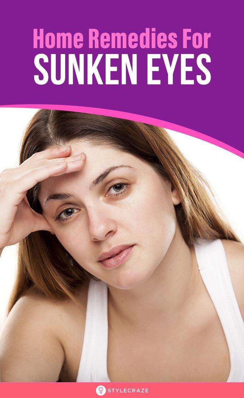 Sunken Eyes – Causes And Remedies in 2020 | Sunken eyes ...