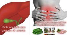 Dieta saludable para operados de vesícula (o con piedras)