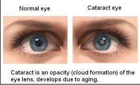 Cataract is the condition in which cloudy lens of the eye affects the vision of the person.  Click here for more queries.