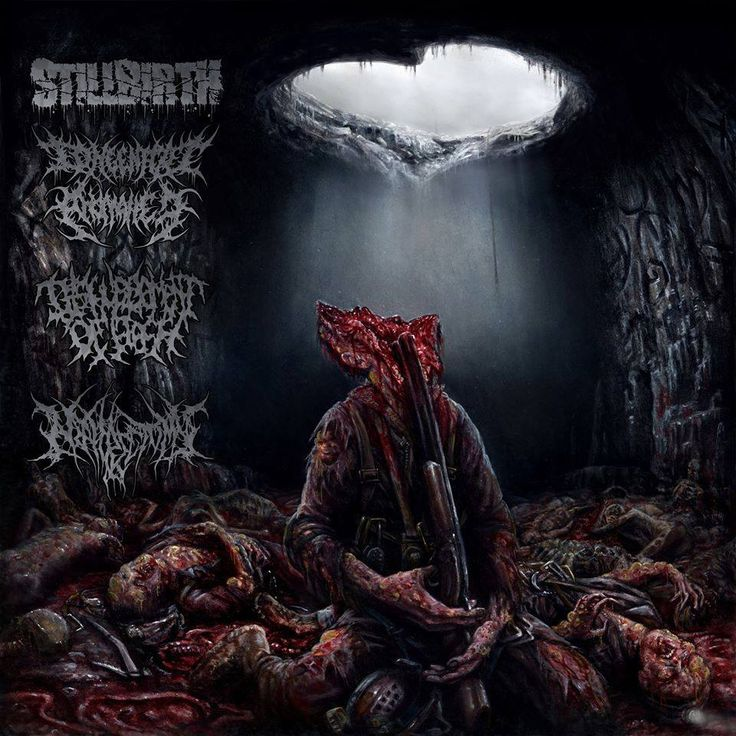 Stillbirth & Congenital Anomalies & Disfigurement Of Flesh & Nephrectomy - Pathology Of Anomalous Origin [2015] (Brutal Death Metal | Brutal Death Metal | Brutal Death Metal | Brutal Death Metal)