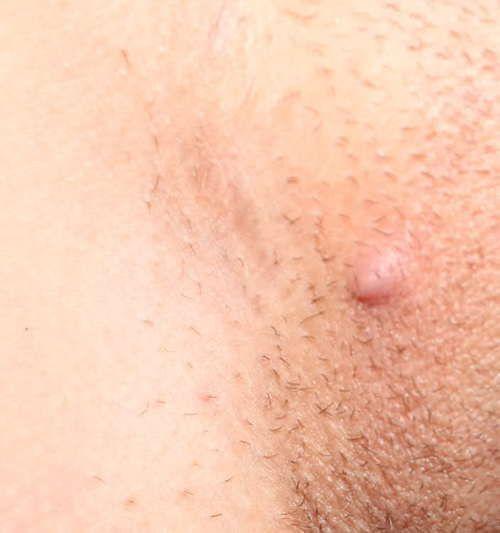 Treatment for vaginal razor burn