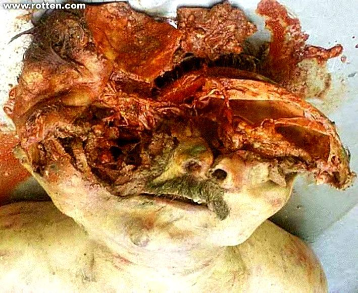 SOME REALLY GROSS PICS OF DEAD PEOPLE | Death comes to us ...