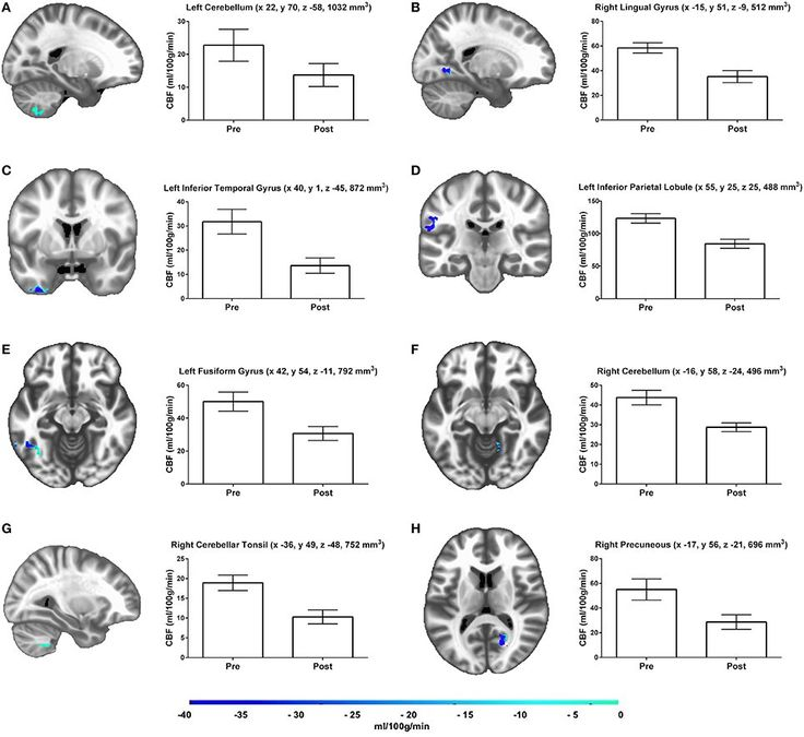 A new study shows that cerebral blood flow within the left and right hippocampus significantly decreases after just 10 days ofwithoutexercise.