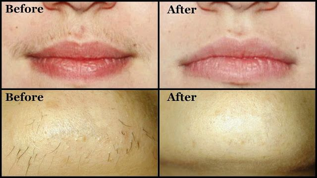 Tips From Doctor Yv Rao To Remove Hair From Upper Lip Unwanted