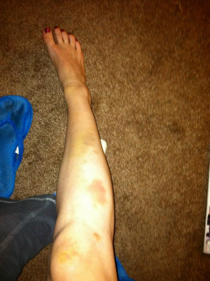 A happy customer / casual muay thai trainer.  Day 3 of Fighter Fix on the shins.  Taken 10/17.