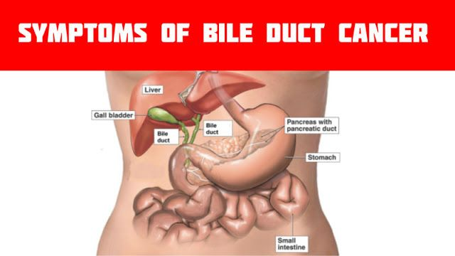 Bile Duct Cancer Cholangiocarcinoma Symptoms Causes