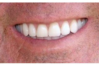 If you want to save some money and get a brighter, whiter smile in the process, then you may want to start cleaning your dentures with hydrogen peroxide. Not only is hydrogen peroxide far less expensive and more economical than individual denture tablets, but it also can help remove stains from coffee and tea that regular denture cleaners may miss....