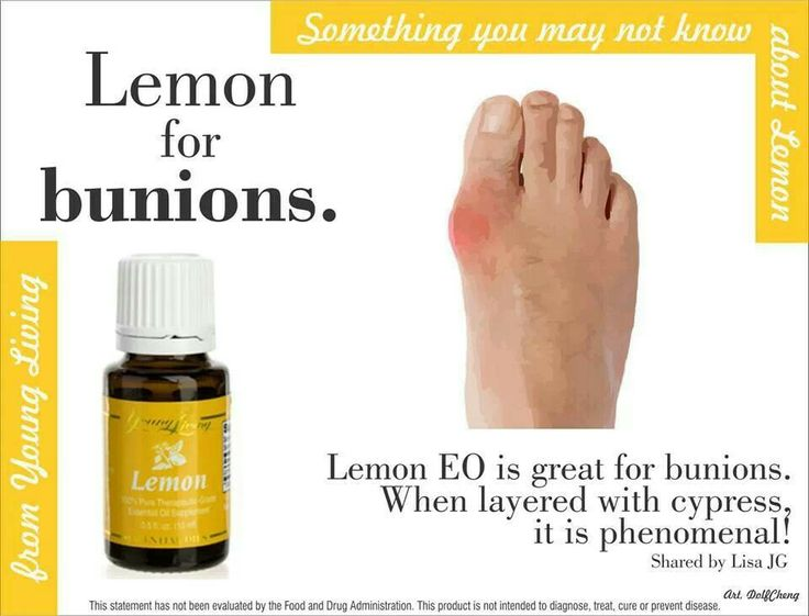 Essential oil for Bunions