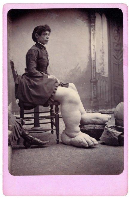 freaks phenomene foire 09 435x660 Des phénomènes de foire dans les années 1870  photographie bonus