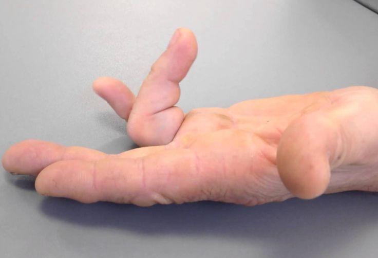 Doigt à ressaut : les solutions naturelles quand les doigts restent bloqués