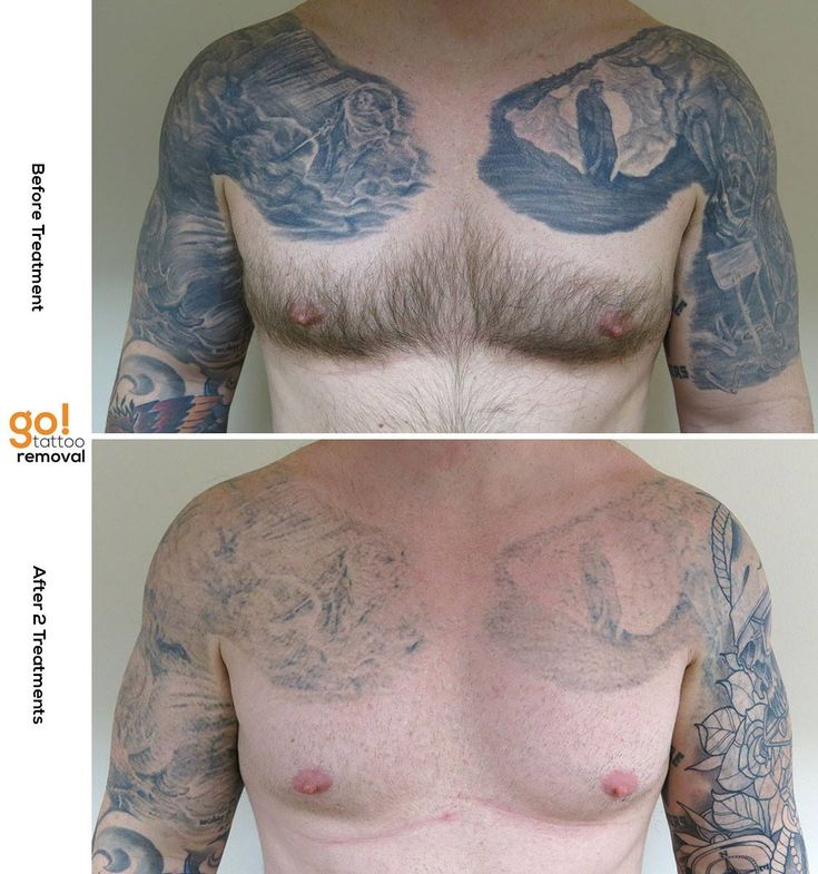 Tattoo Removal Quotes