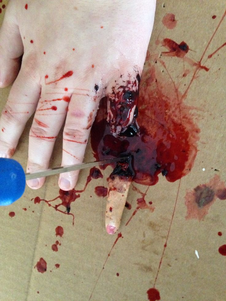 how to deal with cut off fingers