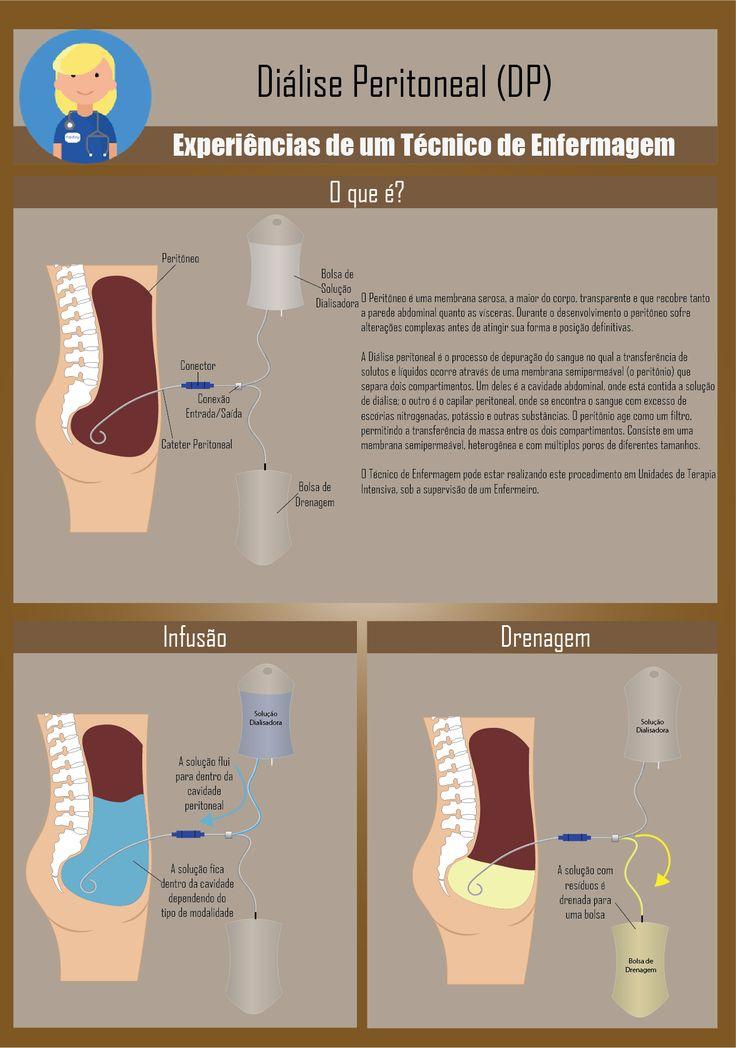 Diálise peritoneal é o processo de depuração do sangue no qual a transferência de solutos e líquidos ocorre através de uma membrana semipermeável (o peritônio) que separa dois compartimentos. Um de…