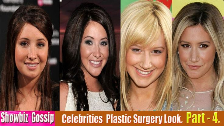 101 Celebrities Plastic Surgery Before and After Look. (31-40) | Part - 4.