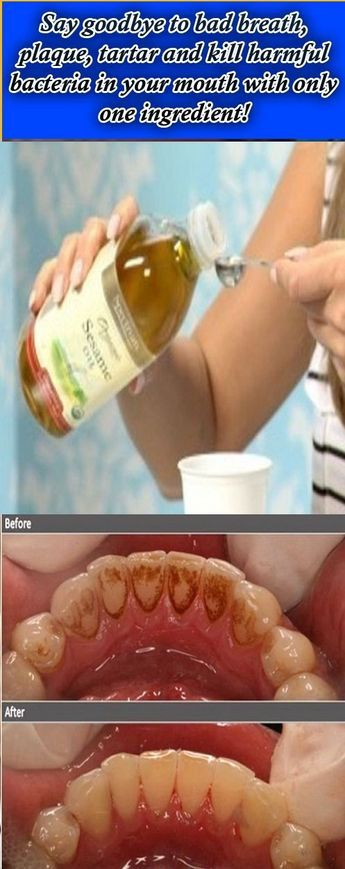 Say goodbye to unhealthy breath, plaque, tartar and kill harmful microorganism in your mouth with just one ingredient! One of the foremost helpful ancient dental techniques that involve swis…