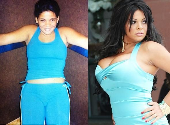Sheyla Hershey Before And After: Without Breast Implants ...  Sheyla Hershey ...