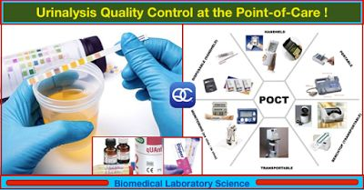 Urinalysis Quality Control at the Point-of-Care !   Clinical Issues  The goal of any clinical diagnostic test procedure is to provide critical information in a timely manner so that appropriate actions may be taken ultimately improving patient outcomes. Point-of-care testing (POCT) is a term that has come to describe a multitude of rapid medical tests that can be performed at or near the site of patient care. The most compelling benefit of these tests is that as opposed to having to wait…