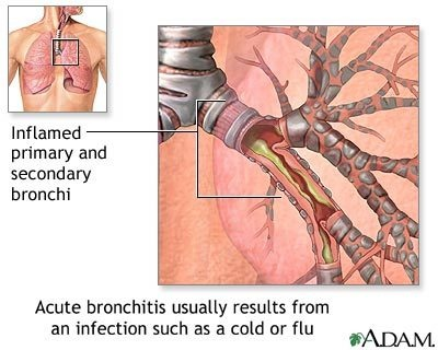 Cause of acute bronchitis    Bronchitis is an inflammation of the bronchial tubes, the part of the respiratory system that leads into the lungs. Acute bronchitis has a sudden onset and usually appears after a respiratory infection, such as a cold, and can be caused by either a virus or bacteria. The infection inflames the bronchial tubes, which causes symptoms such as fever, cough, sore throat, wheezing, and the production of thick yellow mucus.