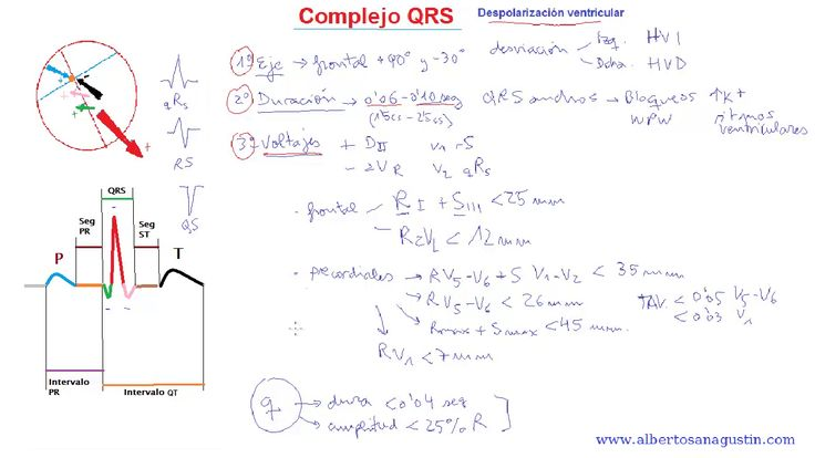 ECG normal (15): Complejo QRS #electrocardiograma http://www.albertosanagustin.com