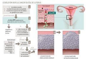 Le cancer du col de l'utérus.