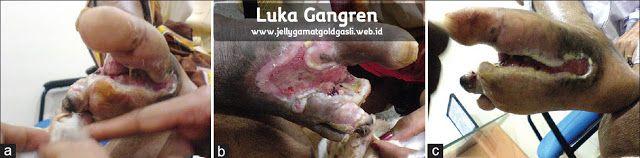 Obat Luka Gangren Di Apotik  Gangren terjadi saat bagian dari jaringan tubuh mati. Hal ini sering terjadi karena jaringan tidak mendapatkan cukup darah dari sistem peredaran darah tubuh kita. Penyakit ini berhubungan erat dengan diabetes, maka tidak sedikit yang menyebutnya sebagai luka diabetes. http://www.jellygamatgoldgasli.web.id/2017/05/obat-luka-gangren-di-apotik.html