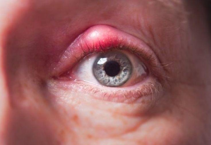 Comment soigner un orgelet naturellement ? noté 3.8 - 5 votes L'orgelet est une infection bénigne, assez disgracieuse, au niveau des glandes oculaires qui se situent à la base des cils et qui fait gonfler le bord de la paupière. Voici donc quelques remèdes naturels à utiliser dès l'apparition de l'inflammation. Une compresse imbibée d'eau...