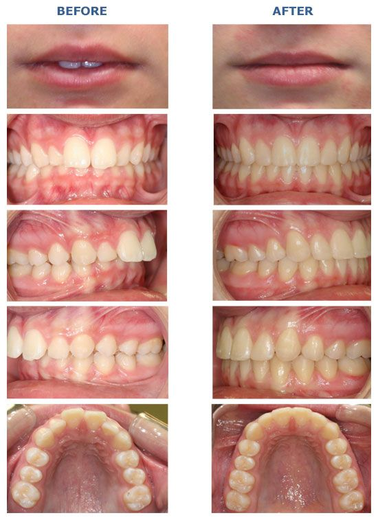 Comprehensive Class Ii Overbite Overjet Before And After