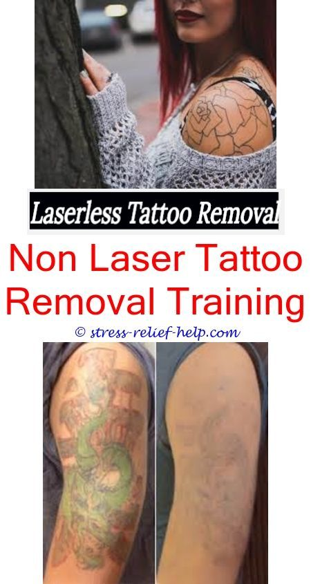 How to remove a tattoo.How much is tattoo removal in australia.How ...